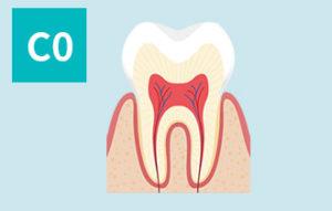 虫歯の進行(c0)