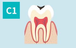 虫歯の進行(c1)