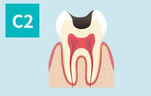 虫歯の進行(c2)