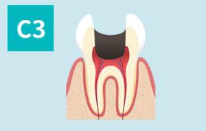 虫歯の進行(c3)