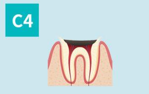 虫歯の進行(c4)