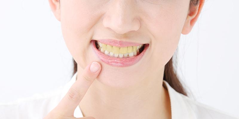 前歯が黄ばんでしまった(イメージ)