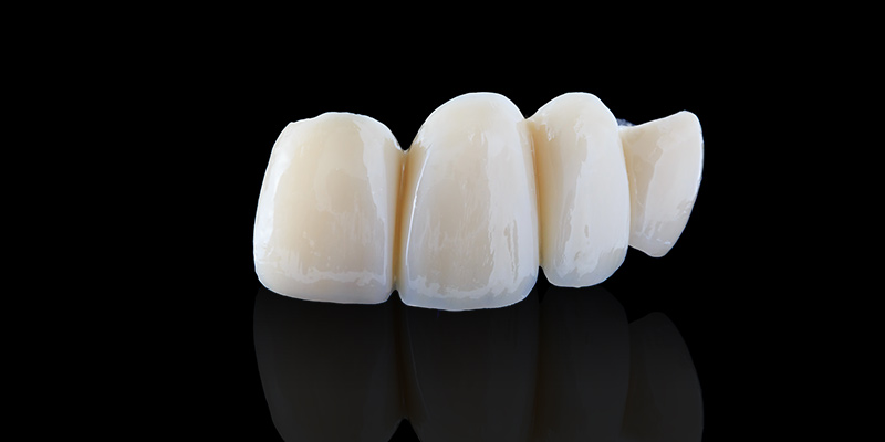 e.max前歯のクラウン(イメージ)