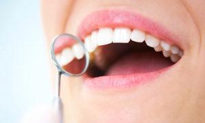 emaxによる前歯の治療(イメージ)