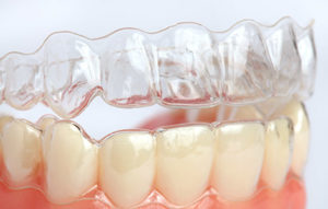 虫歯・歯周病予防に3DS
