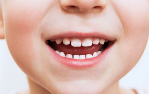 小児歯科・フッ素塗布
